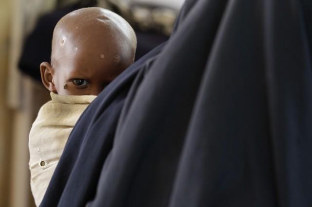 Siccità somalia